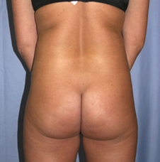 After Liposuction