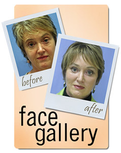 Facial Cosmetic Surgery Gallery